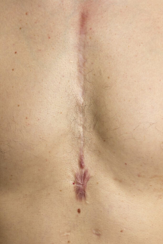 scar on chest